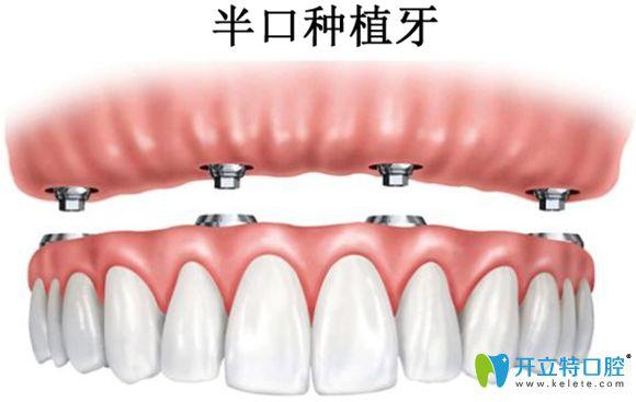 半口种植牙示意图
