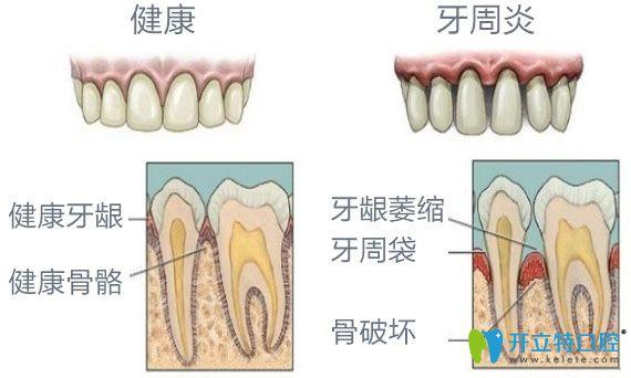 健康牙齿与牙槽骨萎缩牙齿之间对比图