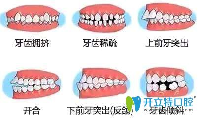 牙齿不齐情况