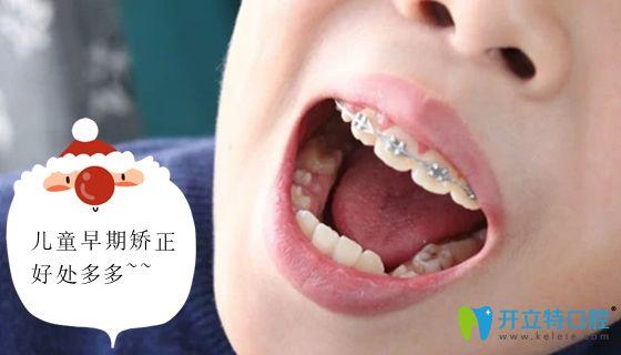 儿童早期牙齿干预矫正的优势介绍