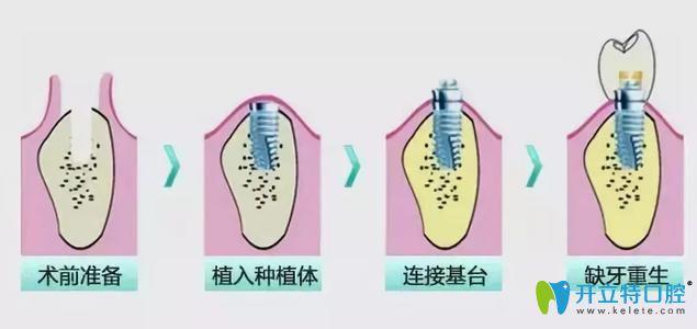 种植牙流程图示