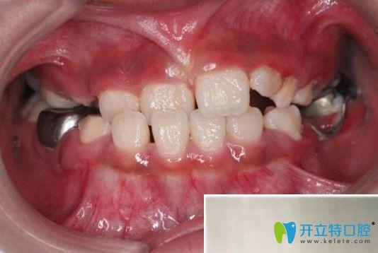 孩子地包天在凸牙医做矫正前的牙齿图