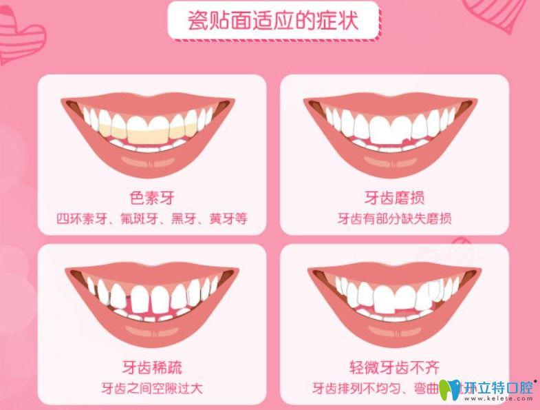 牙齿贴面适合的症状