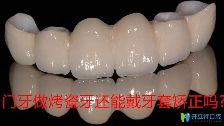 先了解门牙做烤瓷牙还能戴牙套矫正吗?避免烤瓷牙正畸后悔