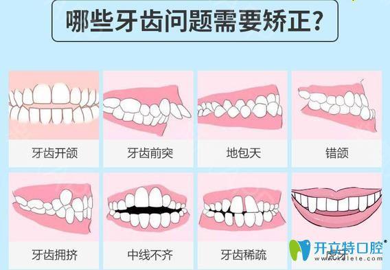需要做牙齿矫正的情况