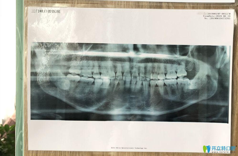 30岁小姐姐龅牙拍片后图示