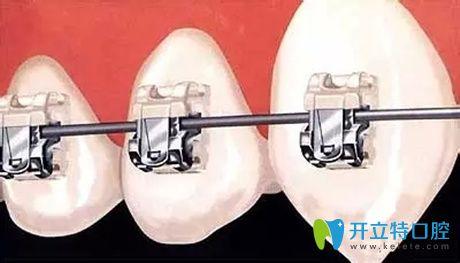 牙齿自锁托槽矫正详图