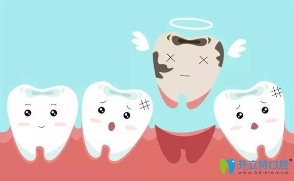 您关注的儿童乳牙预成冠价格及利弊由南京牙仙子口腔分享