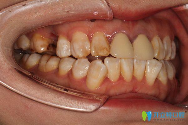 上颌右侧牙齿缺失一颗图示
