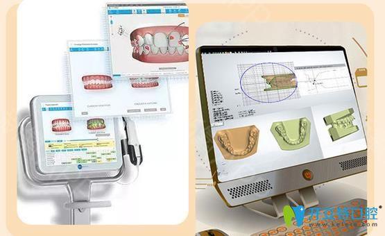 3D口扫仪