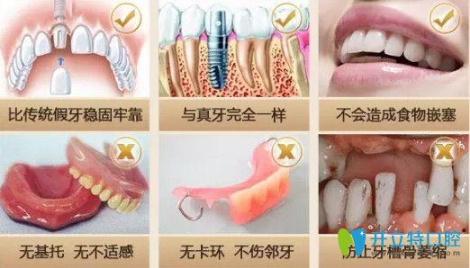 上海中博种植牙优势