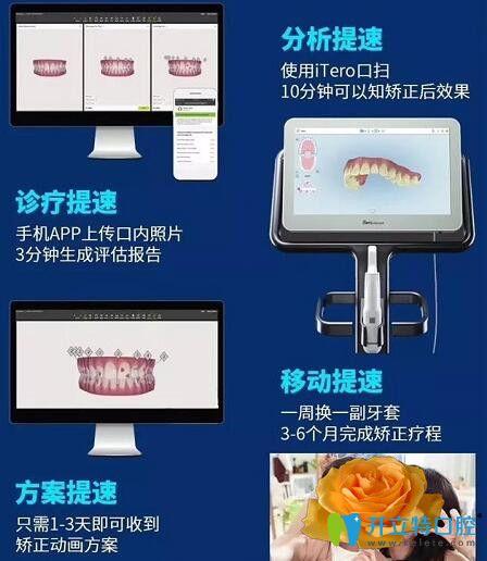 隐形牙齿矫正器隐适美极速版优势
