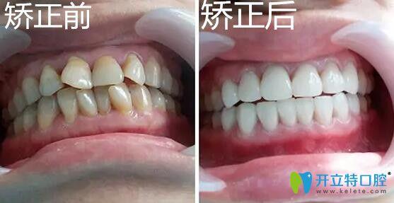 戴隐适美极速版牙套矫正牙齿不齐的效果
