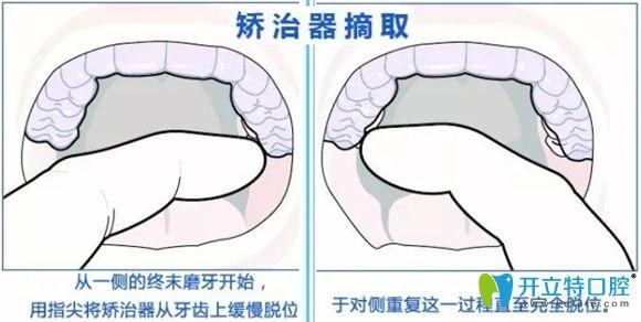 摘取隐形牙套的方法图解