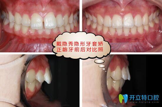 隐秀隐形牙齿矫正效果好吗