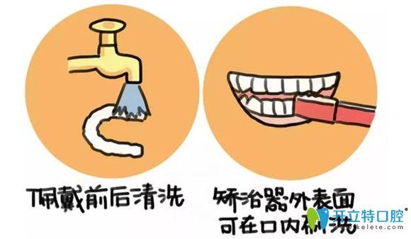 隐形牙套的清洗方法图解