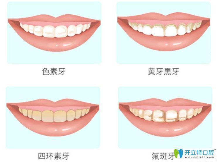 牙齿冷光美白适应症状