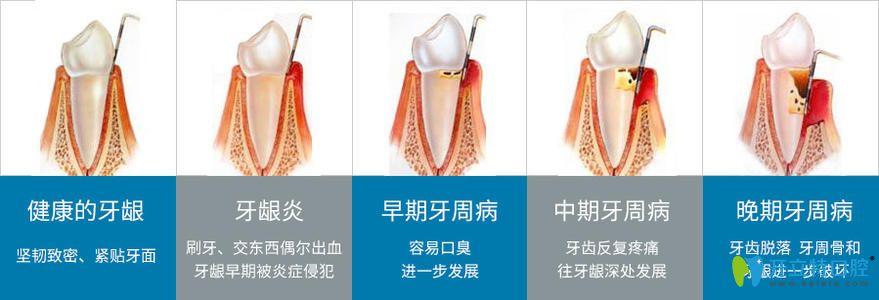 牙周疾病的发展