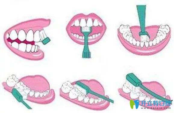 巴氏刷牙法