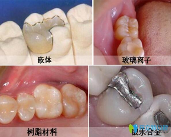 细说高嵌体和牙冠的区别看看哪个贵,补牙选不对再贵也白费