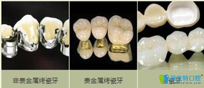 烤瓷牙种类