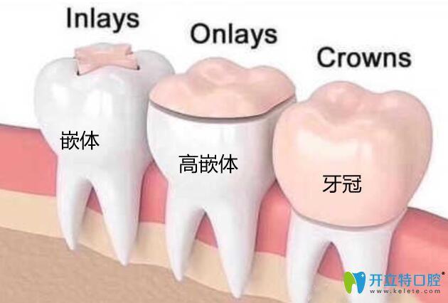 高嵌体和牙冠的区别