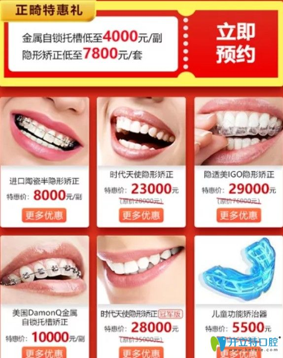 广大看口腔牙齿矫正价格表