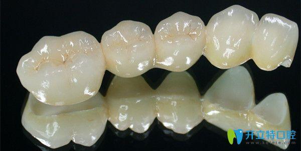 vita全瓷牙的六大优势