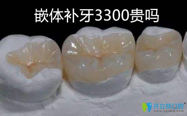 补牙!补牙!关于嵌体补牙3300贵不贵专业机构给出了答案