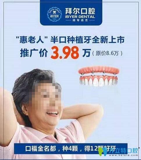 佛山拜尔口腔半口种植牙优惠价格
