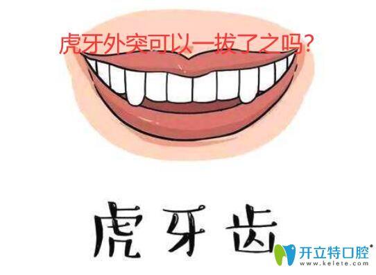 虎牙外凸是拔还是做正畸?若矫正隐形牙套适合虎牙外突吗