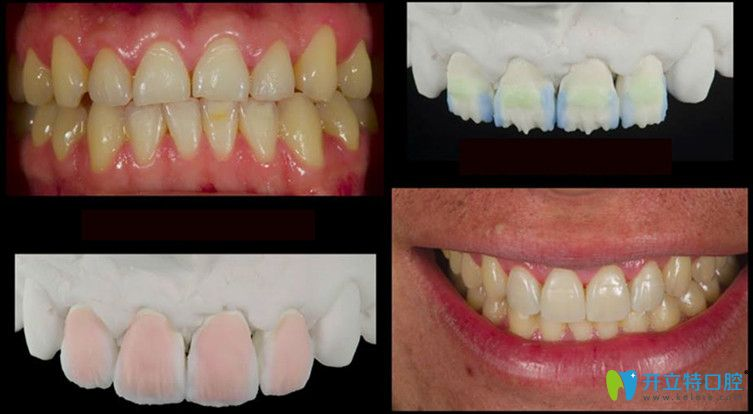 德国vita全瓷牙修复前后效果图