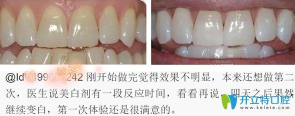 有牙友表示对牙齿冷光美白的效果很满意