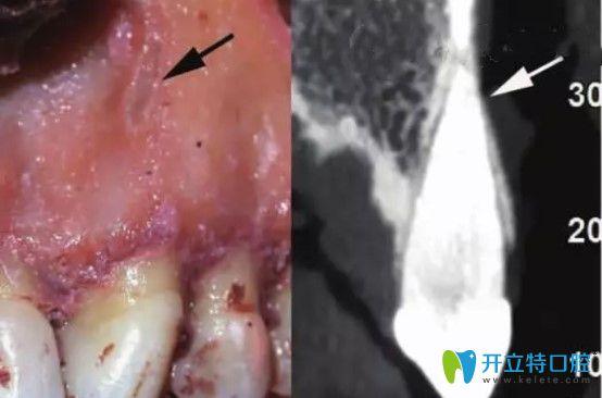 骨开窗牙齿及CT照片