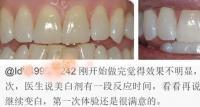 牙齿发黄想做美白,不知道医生推荐的冷光美白牙齿有危害不