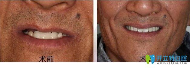 广州雅度口腔上颌半口种植牙真实案例图