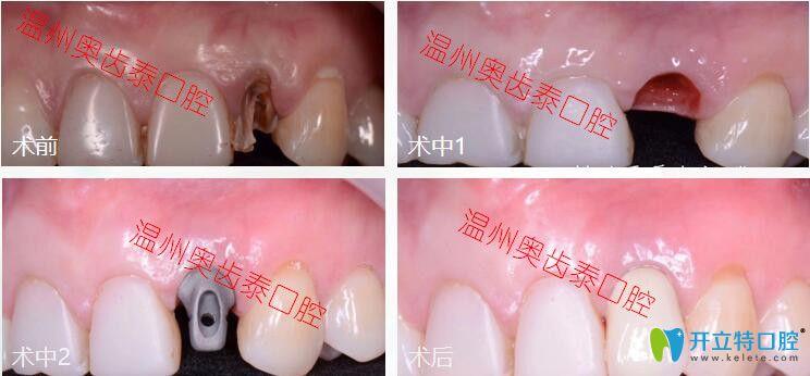 龋齿拔牙后做即刻种植牙案例分享,不当不管不顾佛系缺牙者