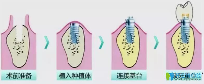 即拔即种和种植牙的区别,其实是对的时机遇见对的牙齿条件