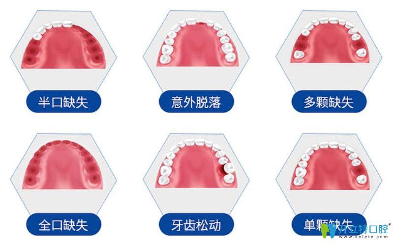 德国赛弗种植体适用于哪些牙齿