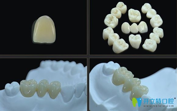 国产全瓷牙品牌爱尔创的前牙和后牙展示图