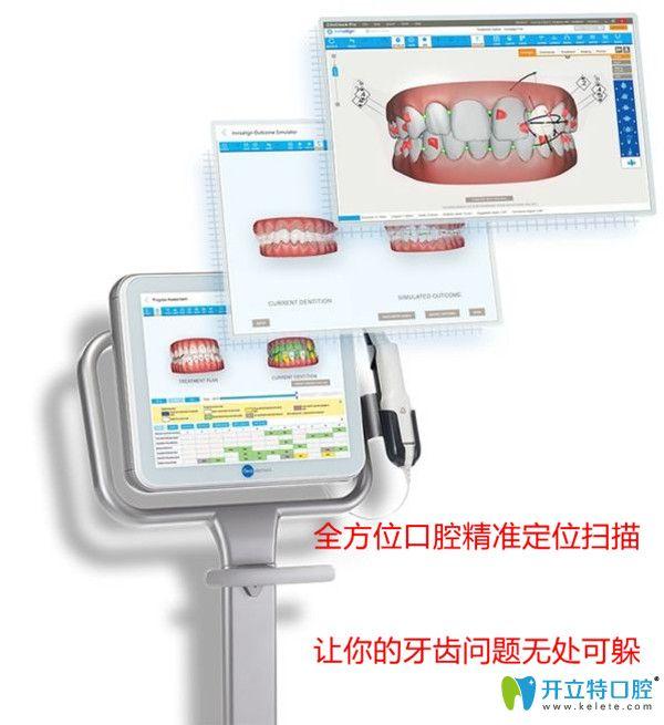 口扫仪3D成像