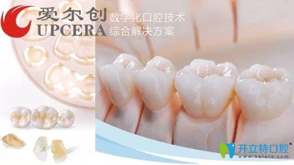 后磨牙做完根管治疗后医生推荐戴爱尔创瓷倍健全瓷牙套