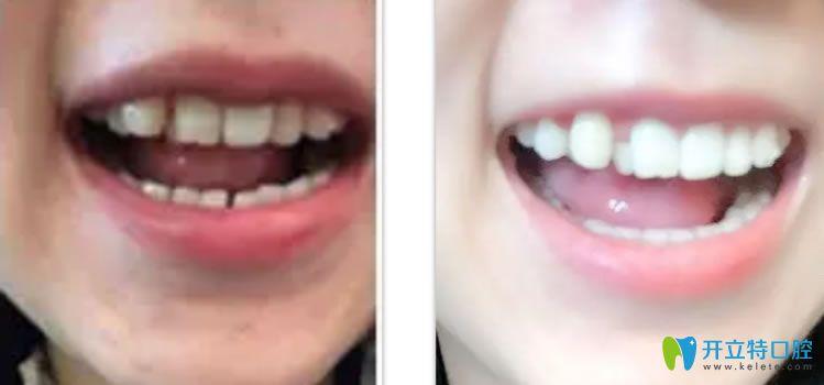 虽说偶滴隐适美隐形虎牙矫正过程不长但前后脸型变化挺大