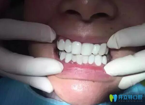 王女士做6d纳米炫齿浮雕牙齿美白图片