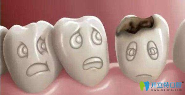 有了蛀牙后才想到牙科去补牙