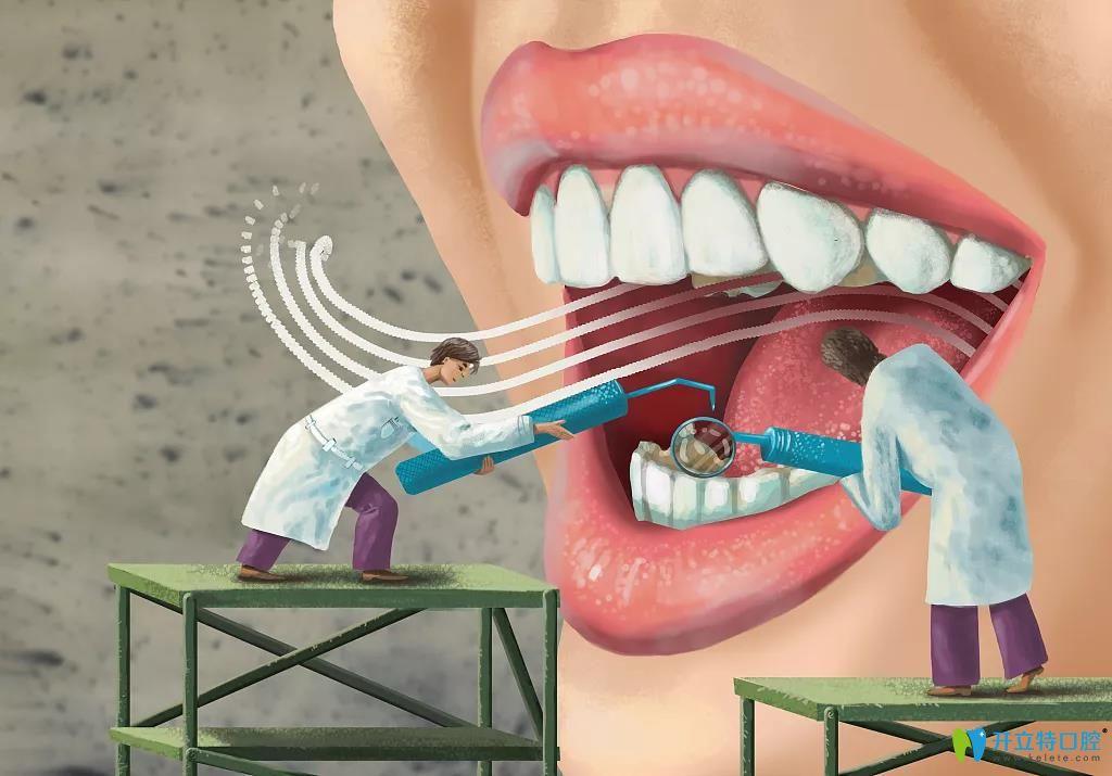 千万不要洗牙,洗牙后会使牙缝变大?是你对口腔健康误会太大