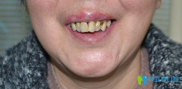 刘阿姨牙齿之前样子