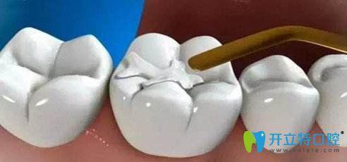 只需要一次治疗就可以补好牙