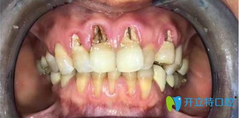 哇!这位阿姨的牙齿楔状缺损修复效果这么赞的吗