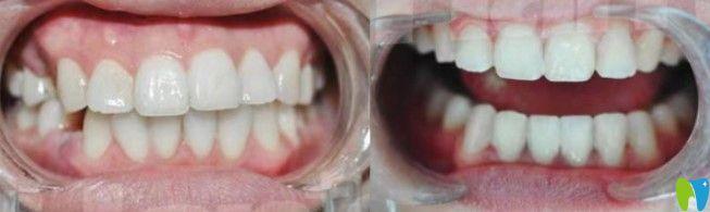 隐适美矫正龅牙效果